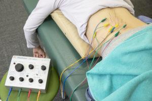 電気鍼治療